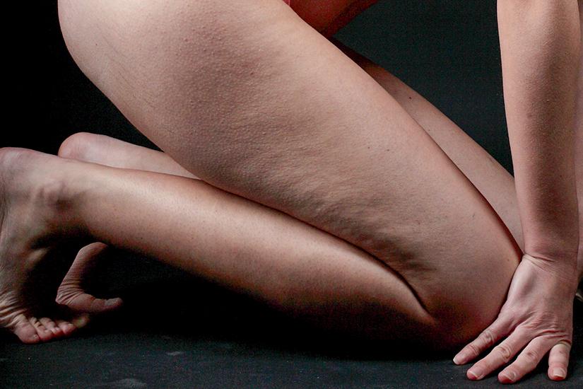 Cellulitis verminderen - 7 tips die wel werken - voorbeeld van lichte cellulite - SLIM CONCEPT